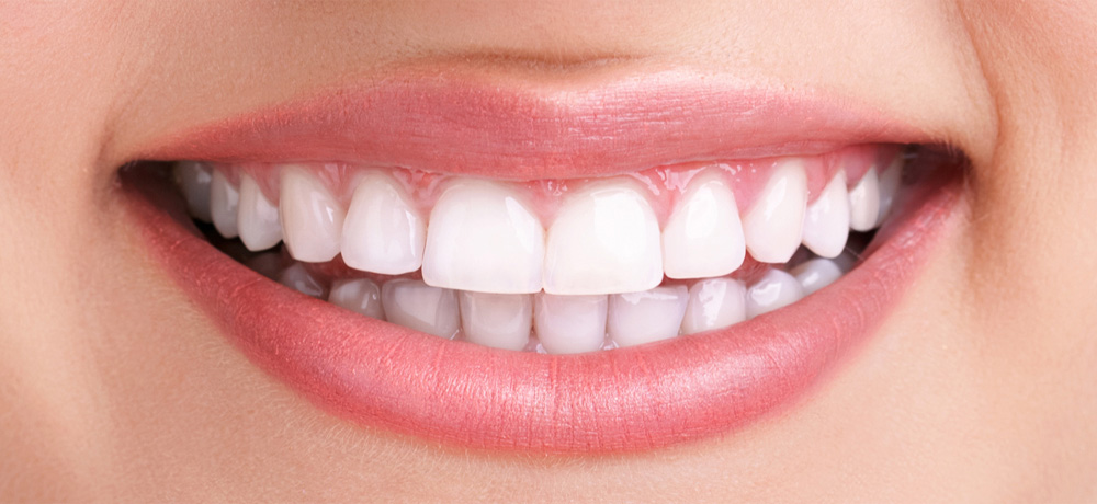 teeth cleaning and teeth whitening