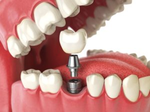 what are dental bridges and crowns