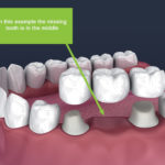 dental bridge and crowns