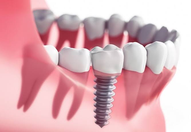 Dental Implant 2