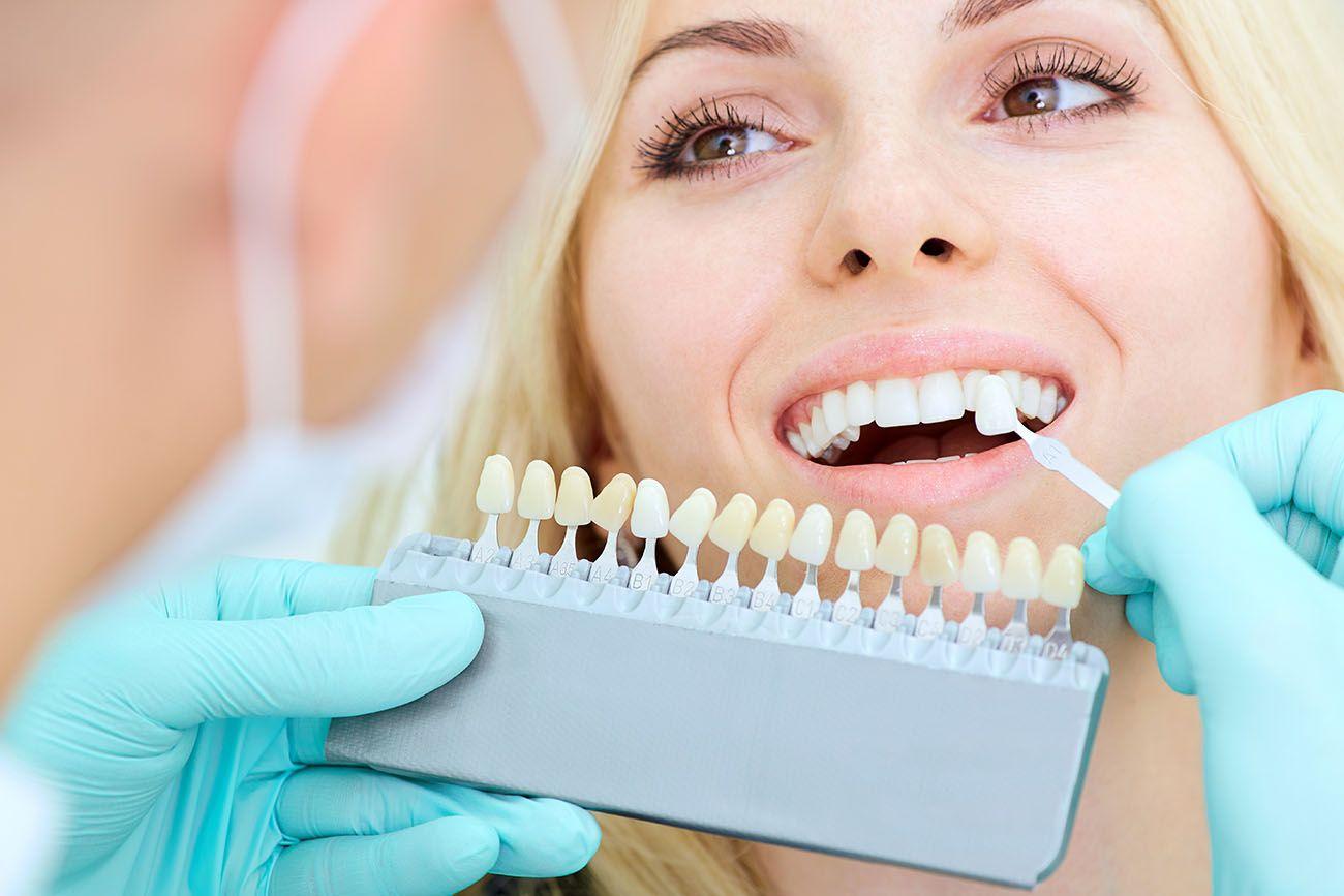 10 Things You Need To Know Before Getting Dental Veneers In Brampton