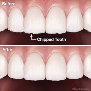 Cosmetic Tooth Reshaping