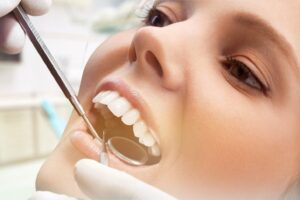 teeth scaling and root planning mayfield dental